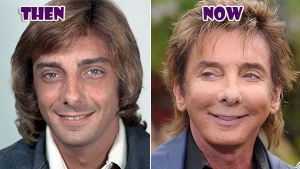 barry-manilow-plastic-surgery