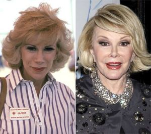 Celebrity-plastic-surgery-faces-before-after8