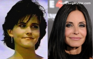 Courtney-Cox-Plastic-Surgery
