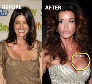 Janice-Dickinson-Plastic-Surgery-Before-After